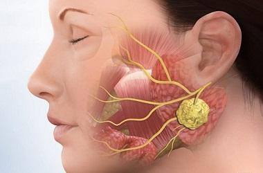 Лечение рака слюнной железы в Израиле