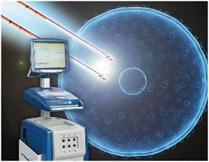 Лечение рака поджелудочной с применением нано-ножа