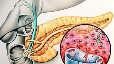 лечение инсулиномы в германии