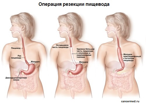 операция резекции пищевода