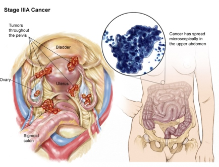 рак яичников 3A стадия